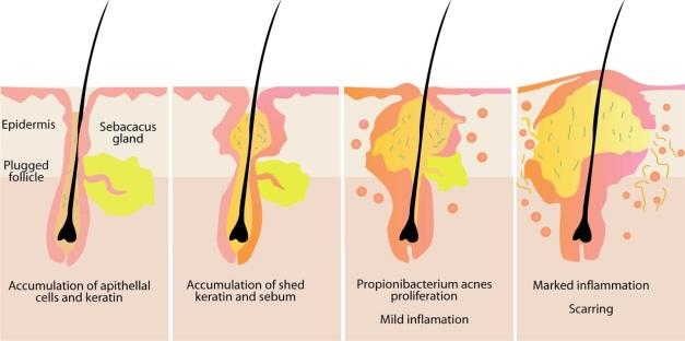 pertumbuhan propionibacterium acnes